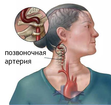 sdavlenie-pozvonochnoy-arterii
