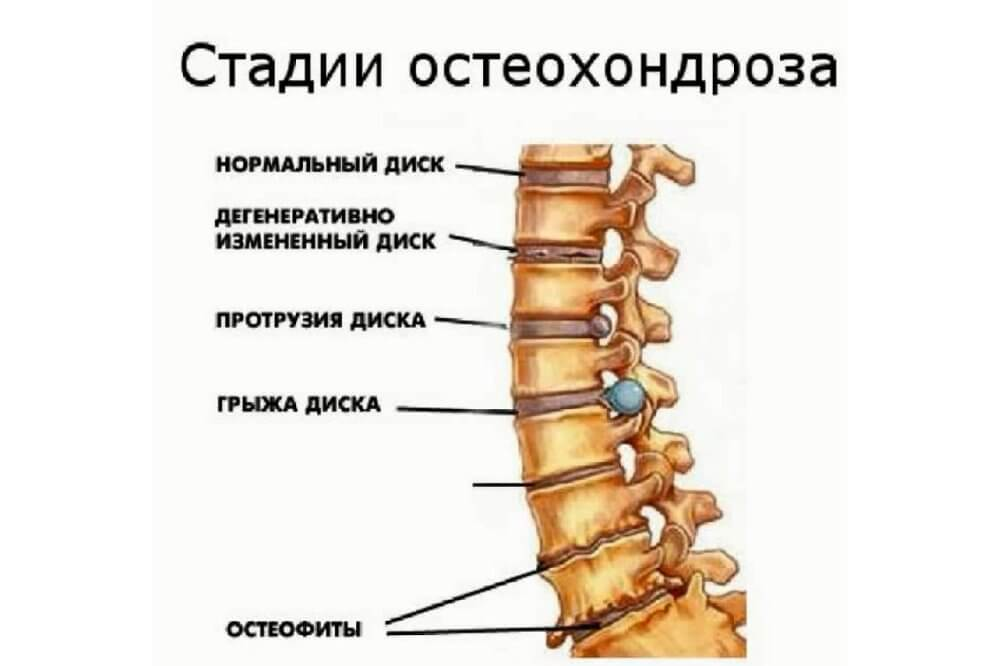 Шейный остеохондроз симптомы по степеням