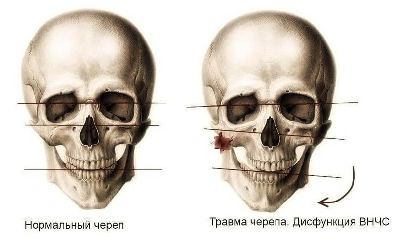 disfunktion visochno nizhnechelustnoy sustav 1