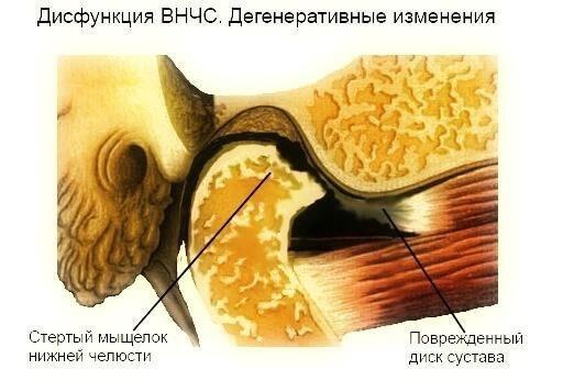 disfunktion visochno nizhnechelustnoy sustav 2