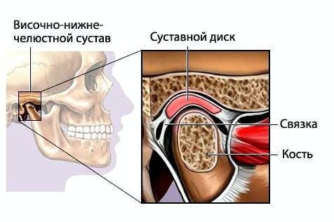 disfunktion visochno nizhnechelustnoy sustav 3