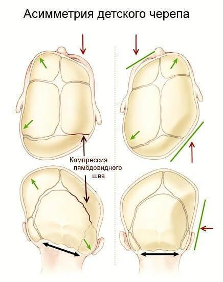 disfunktion visochno nizhnechelustnoy sustav 5