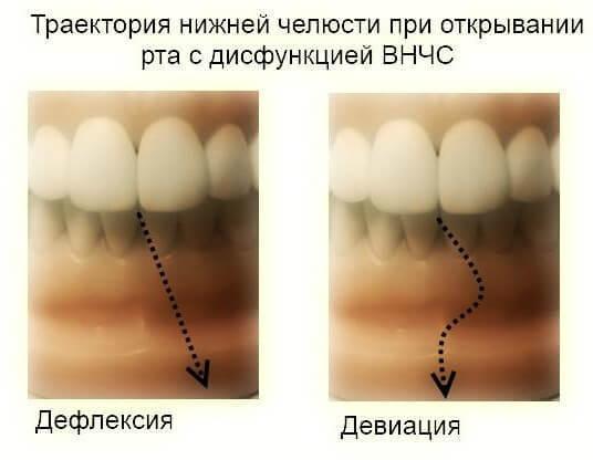 disfunktion visochno nizhnechelustnoy sustav 6